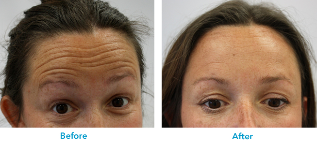 natural wrinkle treatment